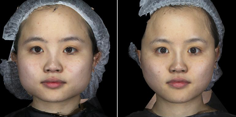 液態拉皮3D聚左旋乳酸舒顏萃杏仁酸換膚13