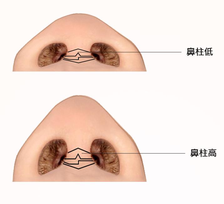 液態拉皮3D聚左旋乳酸舒顏萃全臉體積矯正玻尿酸隆鼻晶亮瓷微晶瓷隆鼻01