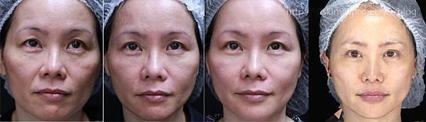 上立皮膚科 林上立 林上立醫生 液態拉皮 3D聚左旋乳酸舒顏萃、塑然雅、Sculptra 老化 鬆弛 拉提 緊實 上立提 推薦11