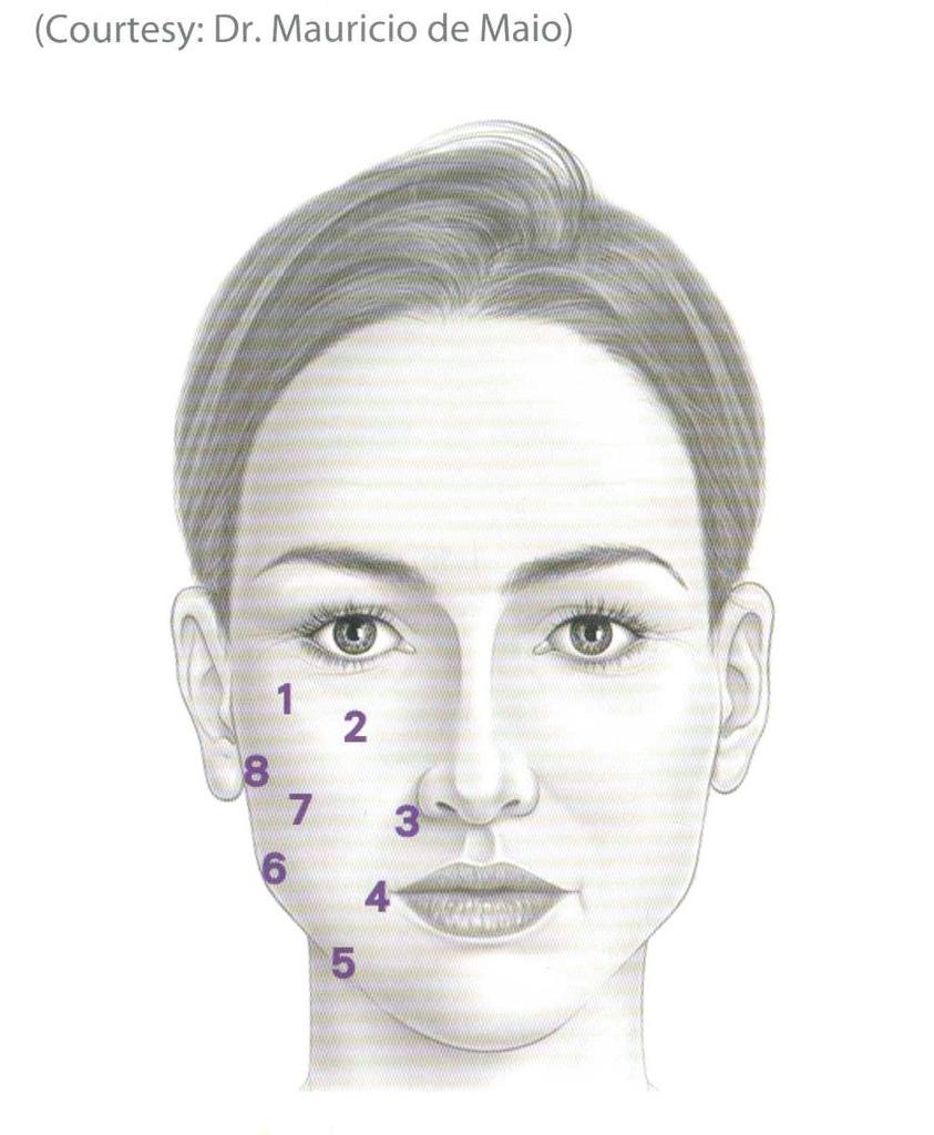 凝膠式玻尿酸八點拉提玻尿酸隆鼻墊下巴.jpg