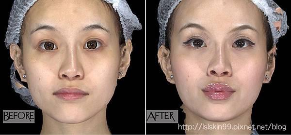 林上立 玻尿酸 豐唇 玻尿酸 上立皮膚科 豐唇 推薦 玻尿酸 推薦10