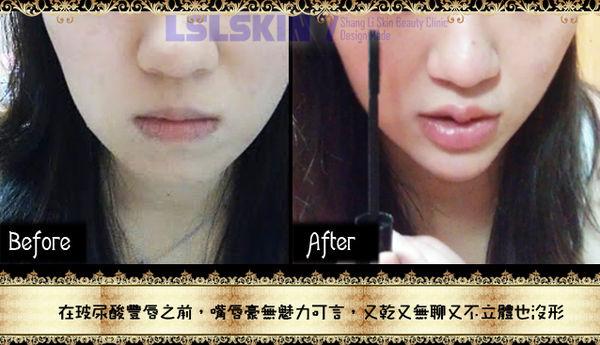 林上立 玻尿酸 豐唇 玻尿酸 上立皮膚科 豐唇 推薦 玻尿酸 推薦12