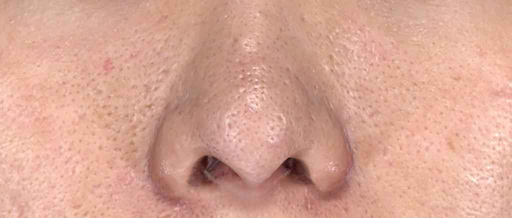 典型的油脂過度分泌造成的毛孔粗大.png