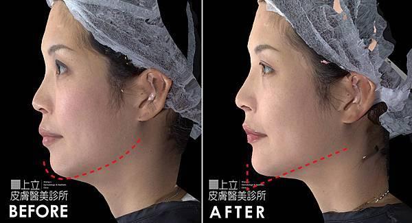 上立皮膚科 推薦 林上立 推薦 林上立 評價 微晶瓷 隆鼻 微晶瓷 墊下巴 微晶瓷 推薦 微晶瓷 拉提 微晶線拉提11.jpg