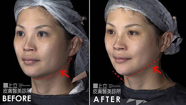 上立皮膚科 推薦 林上立 推薦 林上立 評價 微晶瓷 隆鼻 微晶瓷 墊下巴 微晶瓷 推薦 微晶瓷 拉提 微晶線拉提12.jpg