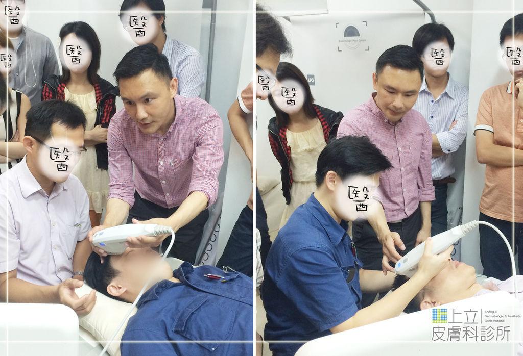 Ulthera超音波拉皮極線音波拉提筋膜拉皮超音波拉皮價格推薦醫師鬆弛下垂法令紋嘴邊肉03