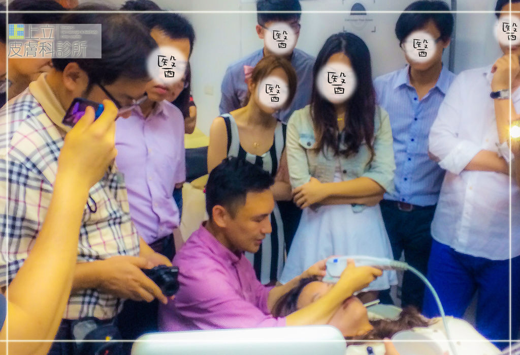 Ulthera超音波拉皮極線音波拉提筋膜拉皮超音波拉皮價格推薦醫師鬆弛下垂法令紋嘴邊肉04