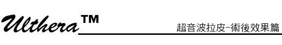 林上立 推薦 液態拉皮 推薦 極線音波拉皮 推薦 極限音波拉皮 推薦 筋膜拉皮 推薦 超音波拉皮 推薦 超音波拉皮 推薦Ulthera超音波拉皮極線音波拉提筋膜拉皮超音波拉皮價格推薦醫師鬆弛下垂法令紋嘴邊肉林上立醫師上立皮膚科18