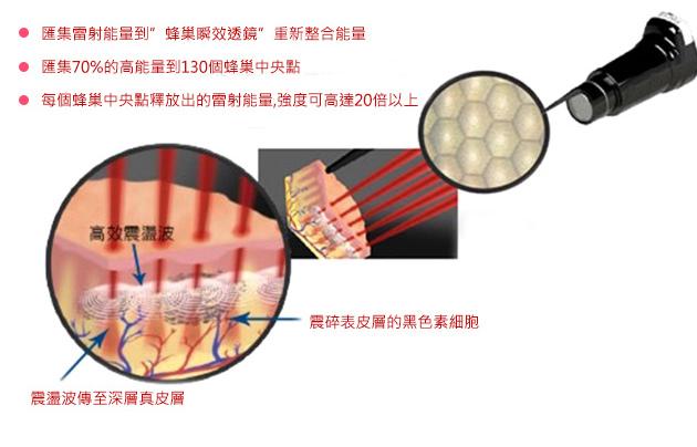 PicoSure蜂巢皮秒機械光雷射除皺雷射皮秒雷射除皺細紋凹疤雀斑曬斑斑點肝斑淨膚雷射飛梭雷射上立皮膚科診所2.jpg