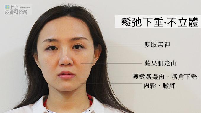 晶亮瓷拉提微晶瓷晶亮瓷隆鼻墊下巴液態拉皮上立提山根淚溝凝膠波尿酸豐唇6