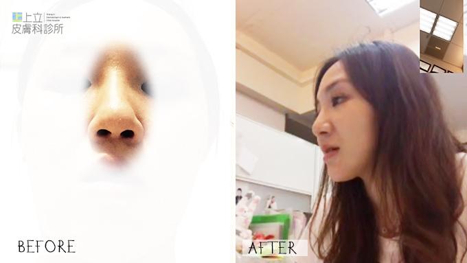 晶亮瓷拉提微晶瓷晶亮瓷隆鼻墊下巴液態拉皮上立提山根淚溝凝膠波尿酸豐唇12