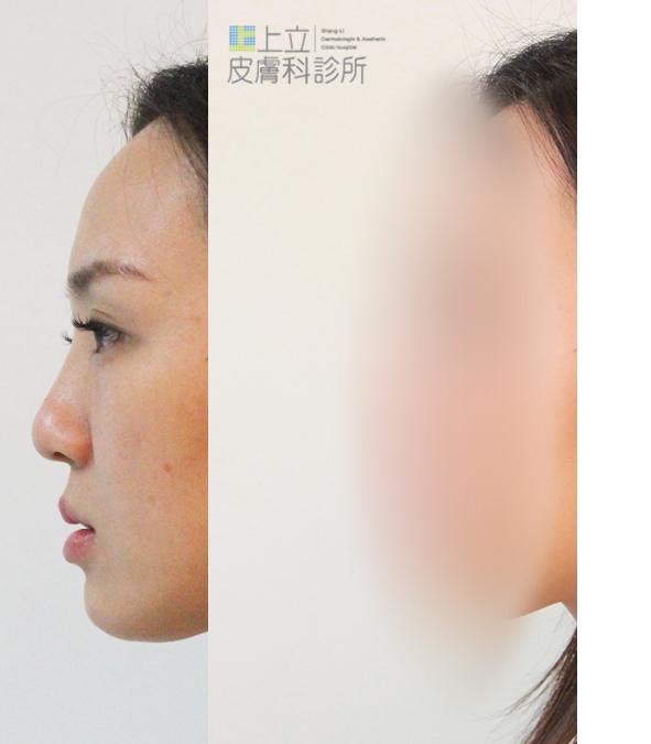晶亮瓷拉提微晶瓷晶亮瓷隆鼻墊下巴液態拉皮上立提山根淚溝凝膠波尿酸豐唇21