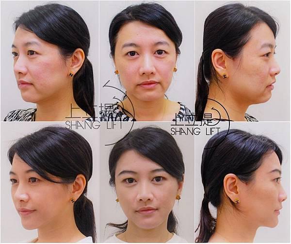 東湖皮膚專科診所 | Facebook_插圖