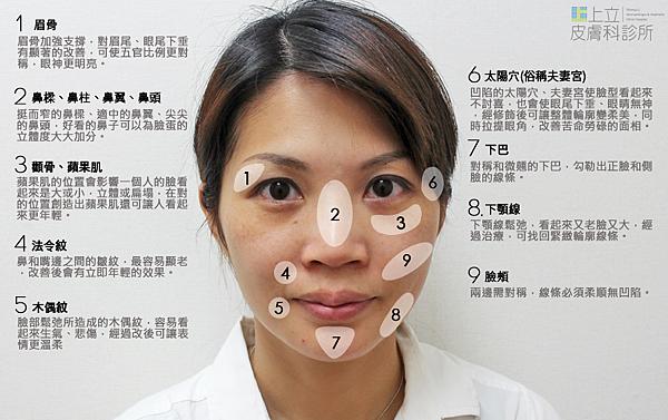 晶亮瓷微晶瓷Radiesse微整形臉部雕塑隆鼻蘋果肌林上立醫師上立皮膚科診所拉提抗老 (3).png