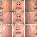 PicoSure755皮秒雷射蜂巢透鏡 皮秒雷射 二代皮秒上立皮膚科 費用 林上立 價格 林上立 評價  液態拉皮上立提 液態拉皮 推薦 少女計劃09