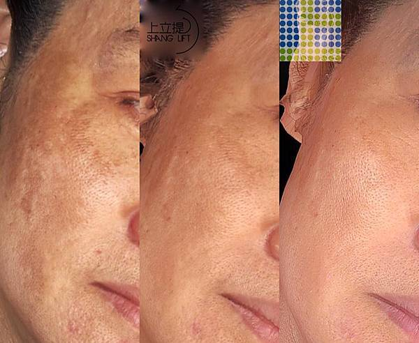 PicoSure755皮秒雷射蜂巢透鏡 皮秒雷射 二代皮秒上立皮膚科 費用 林上立 價格 林上立 評價  液態拉皮上立提 液態拉皮 推薦 少女計劃12