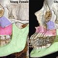 facial-bones-110105-02.png