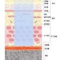皮膚構造+治療方式2.jpg