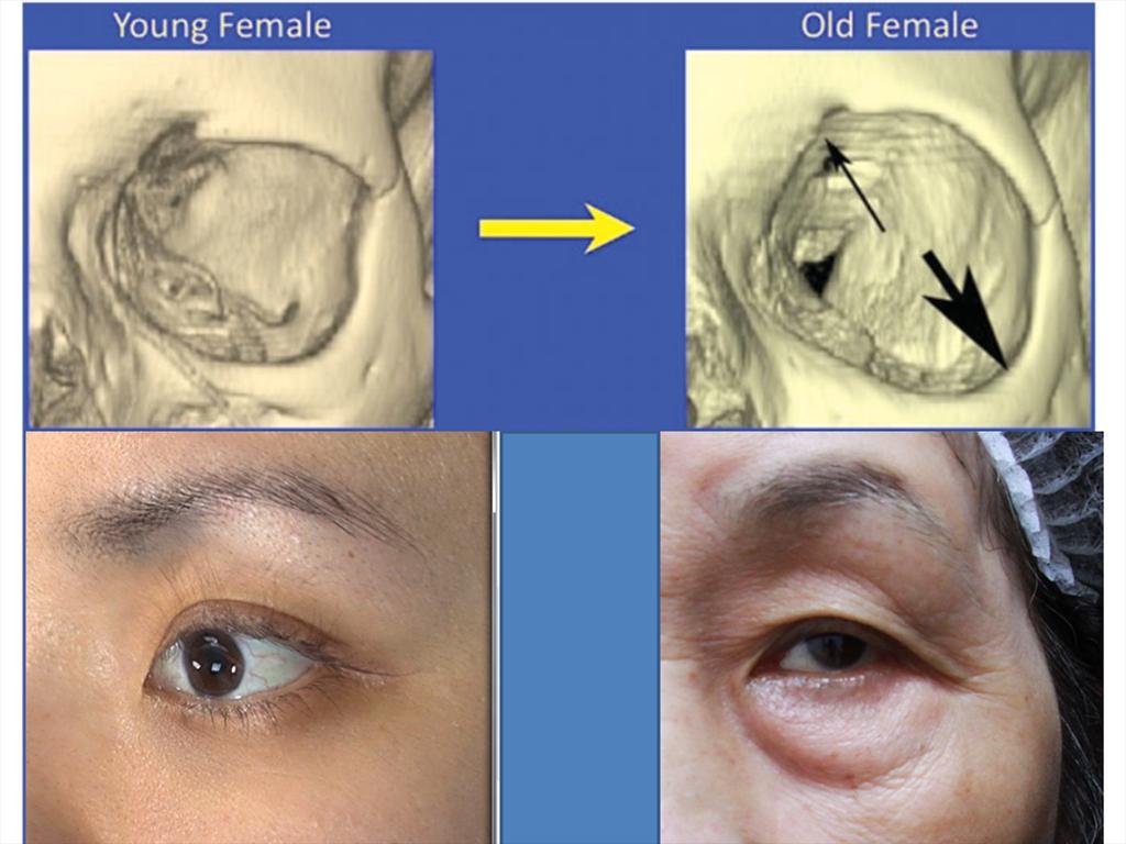 年輕老化的眼睛.png