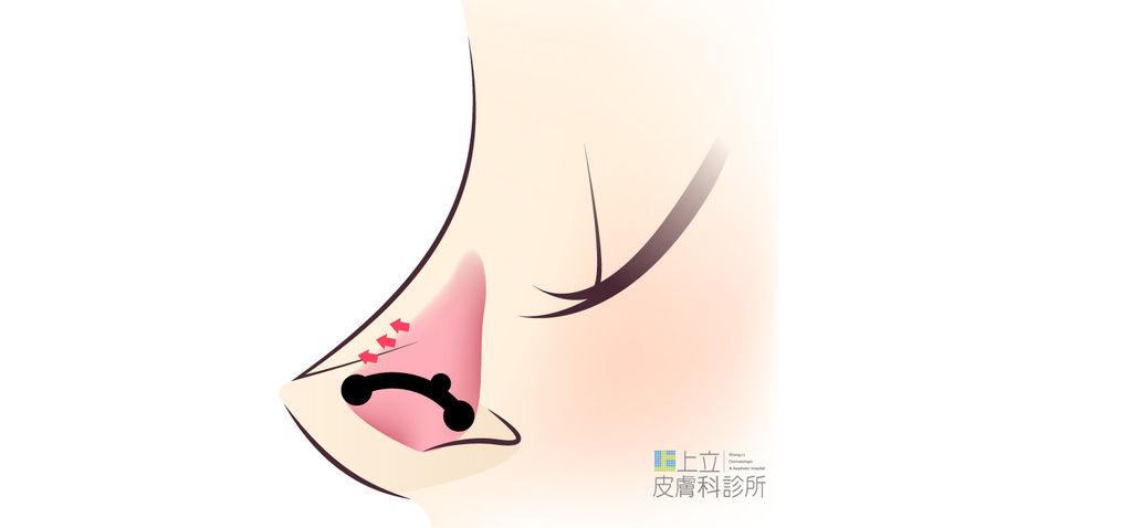 上立鼻子硬軟骨2