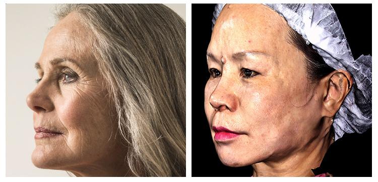 林上立醫師3D聚左旋乳酸Sculptra舒顏萃上立皮膚科微整型 (16).JPG