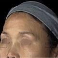 上立微整教室豐額額頭塌陷立體五官Ellanse洢蓮絲聚己內脂膠原蛋白細紋抗老拉提 (4).jpg