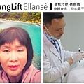 少女計劃林上立醫生液態拉皮上立提 液態拉皮 推薦 聚左旋乳酸膠原蛋白生長膠原蛋白增生劑001