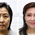液態拉皮超音波拉提林上立醫師微整型抗老拉提法令紋下垂皺紋鬆弛下顎線 (2).jpg
