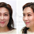 液態拉皮超音波拉提林上立醫師微整型抗老拉提法令紋下垂皺紋鬆弛下顎線 (7)