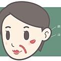 Ellanse洢蓮絲上立微整教室法令紋細紋法令紋木偶紋老化膠原蛋白流失 (3).jpg