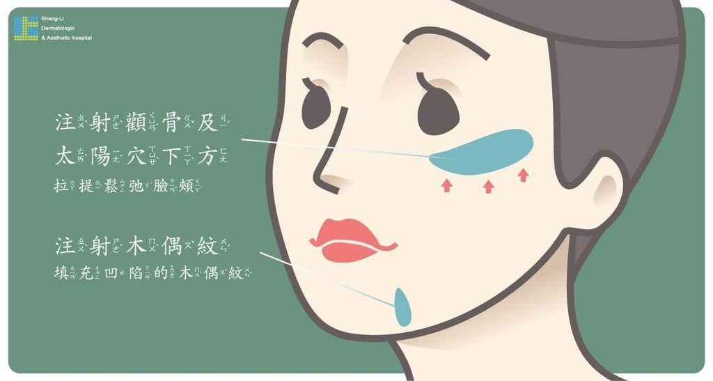 Ellanse洢蓮絲上立微整教室木偶紋法令紋抗老回春治療 (3).jpg