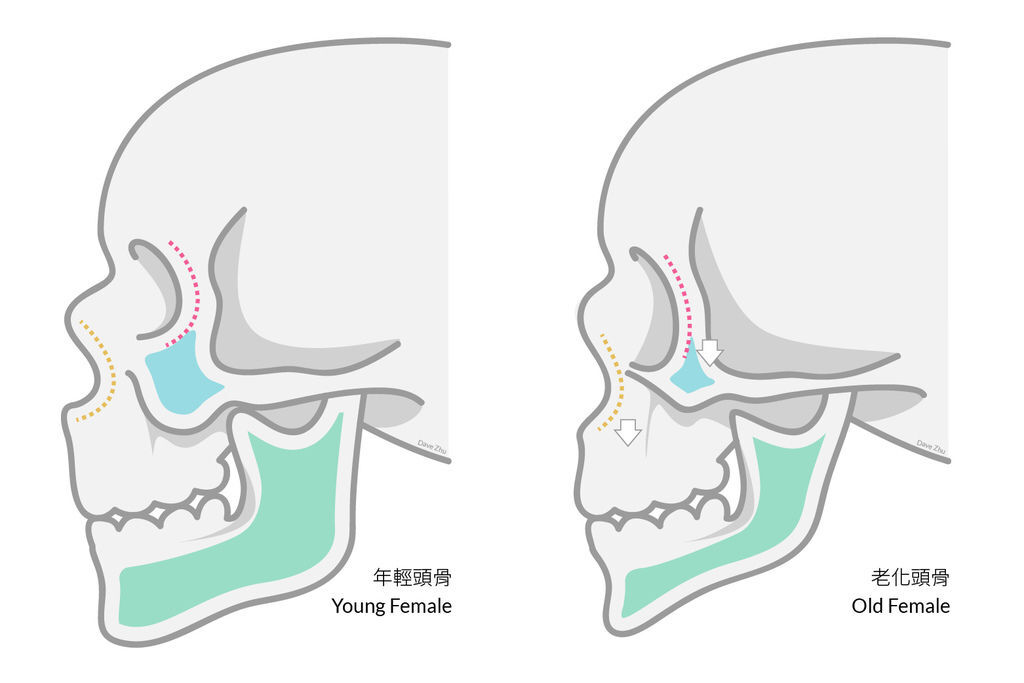 上立皮膚科液態拉皮Ellanse洢蓮絲3D聚左旋乳酸抗老拉提 (5).jpg