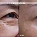 上立皮膚科肉毒桿菌botox咀嚼肌法令紋皺紋凹陷填補林上立醫師 (5).jpg