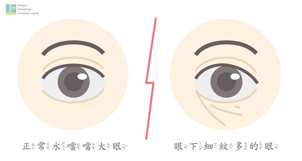 上立微整教室眼下細紋眼周皺紋下垂老化抗老膠原蛋白755皮秒雷射蜂巢透鏡 (2).jpg
