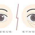 上立微整教室眼下細紋眼周皺紋下垂老化抗老膠原蛋白Ellanse洢蓮絲 (2).jpg