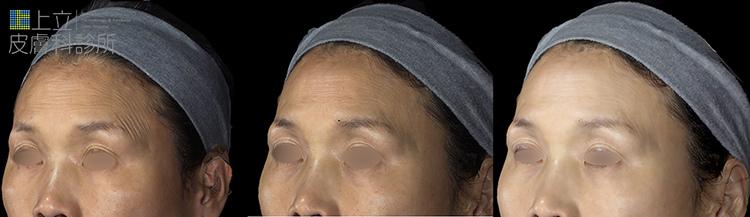 上立微整教室眼下細紋眼周皺紋下垂老化抗老膠原蛋白755皮秒雷射蜂巢透鏡 (6).jpg