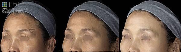 上立微整教室眼下細紋眼周皺紋下垂老化抗老膠原蛋白Ellanse洢蓮絲 (6).jpg