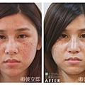 PicoSure755皮秒雷射蜂巢透鏡膠原蛋白斑點黑色素毛孔粗大細紋痘疤林上立醫師上立皮膚科 (3).jpg