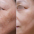 PicoSure755皮秒雷射蜂巢透鏡膠原蛋白斑點黑色素毛孔粗大細紋痘疤林上立醫師上立皮膚科.png