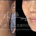 林上立上立皮膚科3D聚左旋乳酸舒顏萃液態拉皮液態拉皮上立提童顏針06.jpg