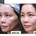 林上立上立皮膚科3D聚左旋乳酸舒顏萃液態拉皮液態拉皮上立提童顏針09.jpg