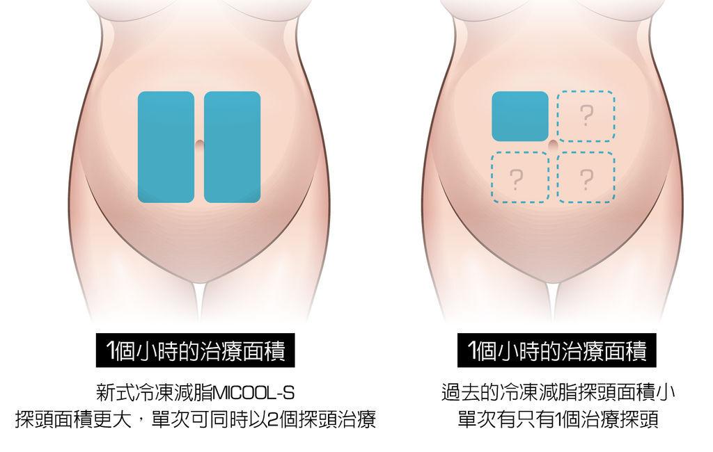 冷凍溶脂冷凍減脂非侵入式體雕抽脂副作用肚子瘦手臂大腿5