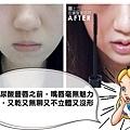 玻尿酸豐唇心得淚溝玻尿酸法令紋價格價位推薦醫師