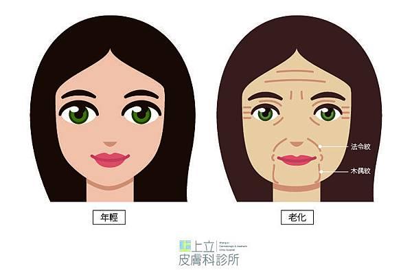 【洢蓮絲Ellansé】木偶紋治療分享與案例-01.jpg