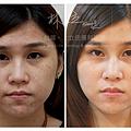 755皮秒雷射蜂巢皮秒雷射蜂巢透鏡術後恢復期林上立醫師上立提膚科診所