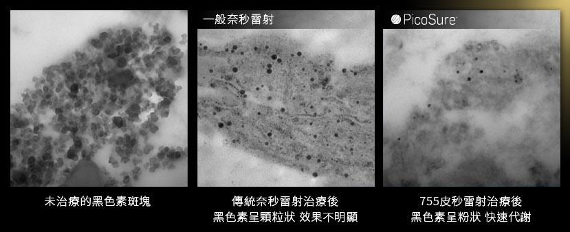 防曬紫外線SPF防曬乳挑選PA+++皮秒雷射755蜂巢皮秒雷射蜂巢透鏡picoSure新一代皮秒超皮秒雷射5