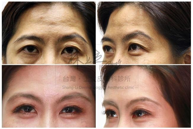 額頭凹陷老化皺紋細紋抬頭紋洢蓮絲肉毒桿菌755蜂巢皮秒雷射16