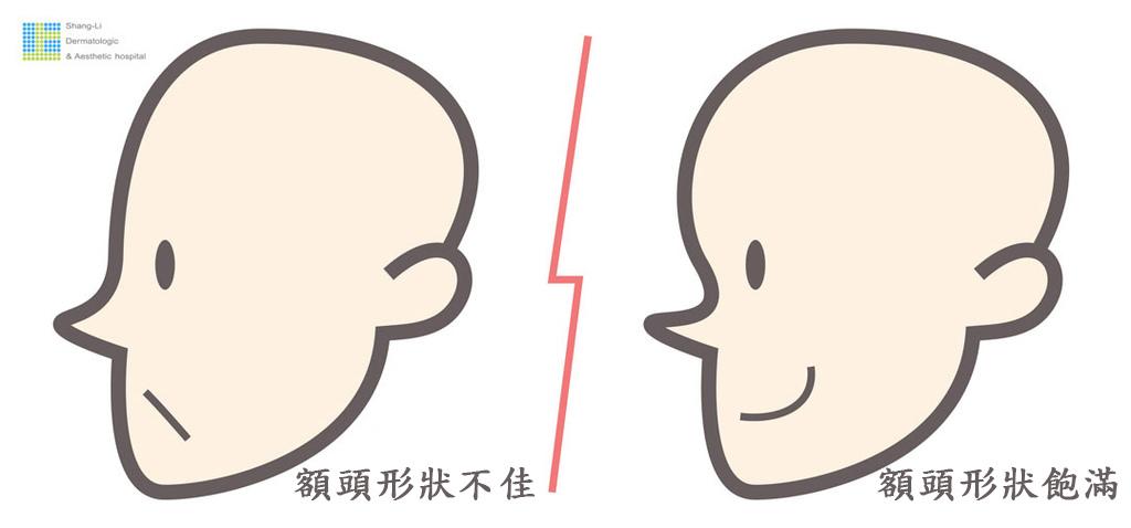 額頭凹陷老化皺紋細紋抬頭紋洢蓮絲肉毒桿菌755蜂巢皮秒雷射1