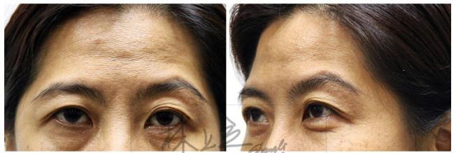 額頭凹陷老化皺紋細紋抬頭紋洢蓮絲肉毒桿菌755蜂巢皮秒雷射