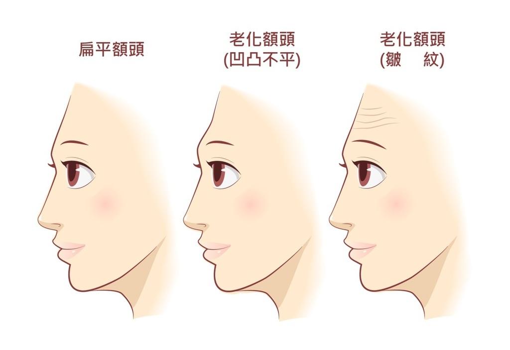 額頭凹陷老化皺紋細紋抬頭紋洢蓮絲肉毒桿菌755蜂巢皮秒雷射4